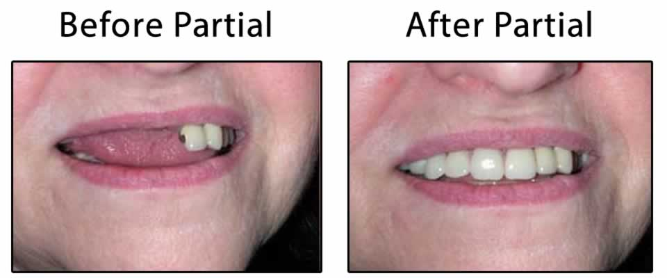 Before and After Partial Denture title=