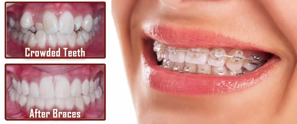 Braces Help Crooked and Crowded Teeth