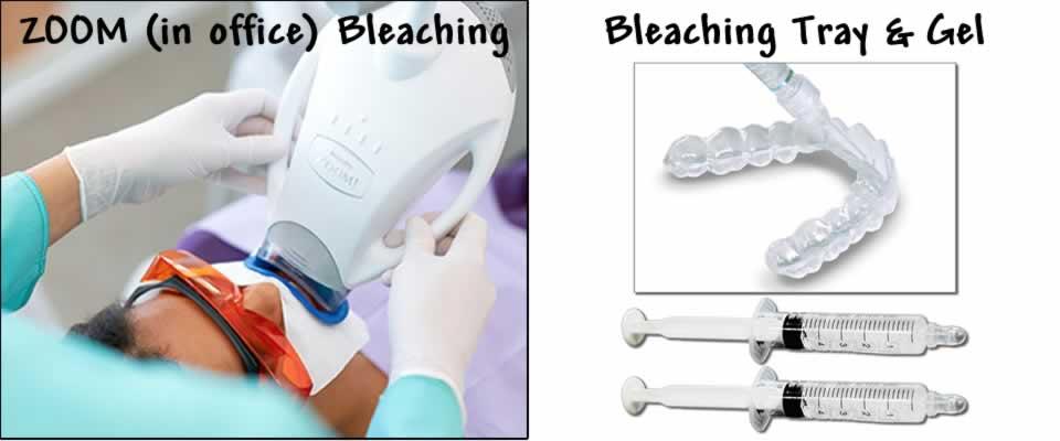 Dental Bleaching Options