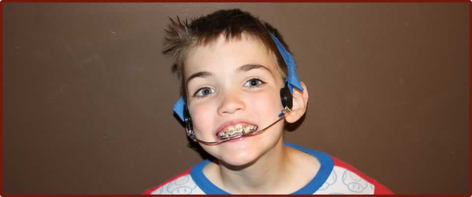 Dental Headgear for children