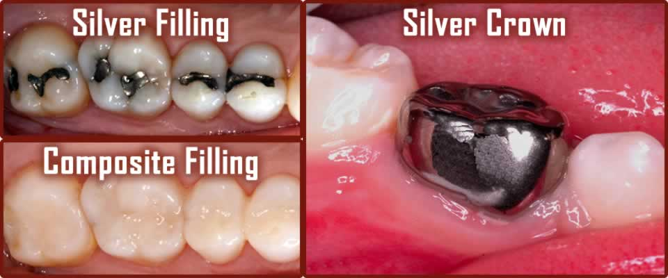 Silver / Compsite Filling and Silver Crown