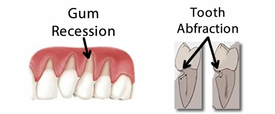 Gum Recession and Tooth Abfraction