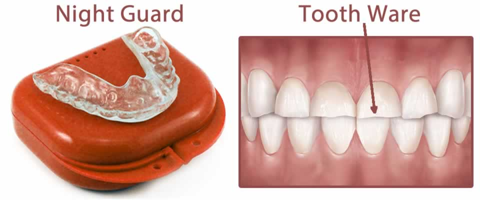 Dental Night Guard
