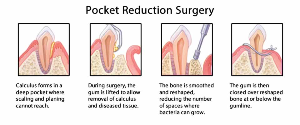 Pocket Reduction Surgery