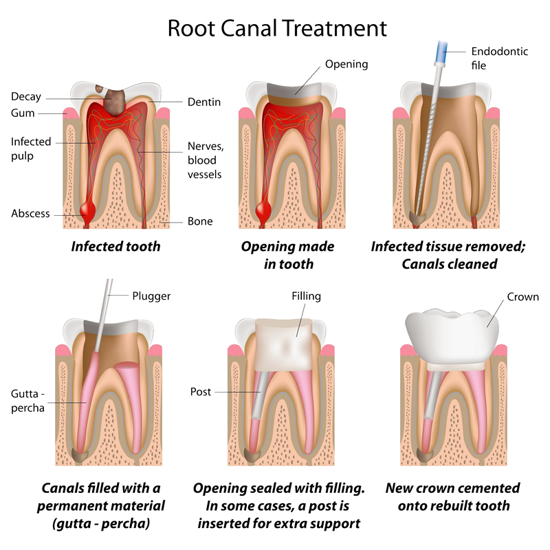 Root Canal Treatment graphic