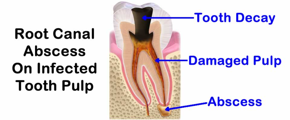 Root Canal Abscess On Infected Tooth Pulp