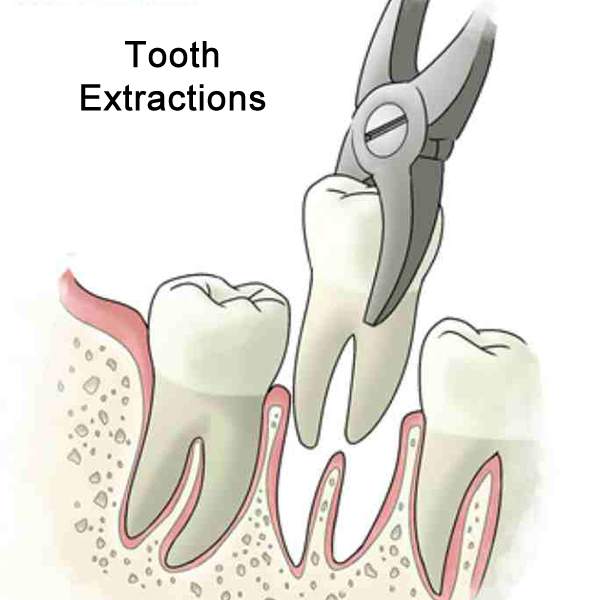 Tooth Extractions Demonstration
